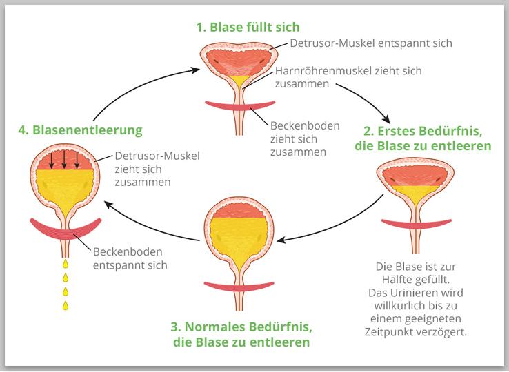 Ursachen Inkontinenz